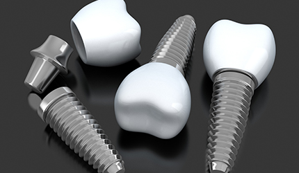 Three animated implant supported dental crowns