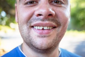 man with a chipped tooth